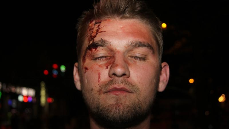 Thaddeus Pall was attacked in May 2017 in downtown Madison, Wis., by a group of men he suspected were anti-fascists. The FBI has investigated the attack, which Pall said came after he and other Proud Boys members met at a Madison bar.